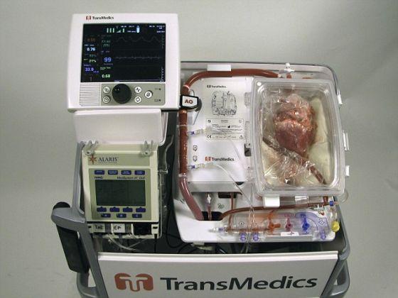 悉尼圣文森特医院的医生运用澳大利亚开发的心脏复跳控制台和保存液为患者移植死了的心脏。