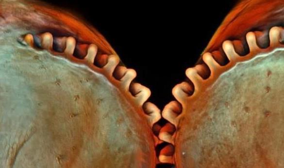 微观世界:2014最佳生物显微摄影